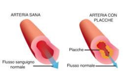 Arteriosclerosi: l'acqua alcalina ionizzata può dare beneficio.