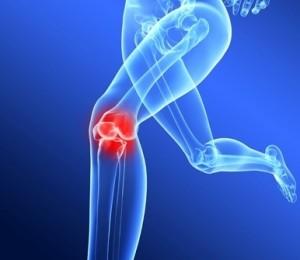 Artrite, ernia del disco, osteoartrite, infiammazioni, tendiniti, borsiti, possono essere causate da acidosi e disidratazione cronica, L'acqua alcalina ionizzata può aiutare ad eliminarne la causa