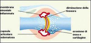 Artrite: l'acqua alcalina ionizzata può dare beneficio.