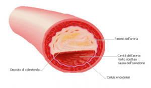 Colesterolo: l'acqua alcalina ionizzata può dare molti benefici.